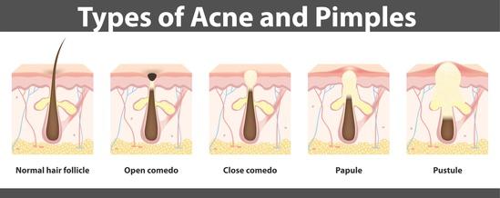 Formation d'un bouton d'acné