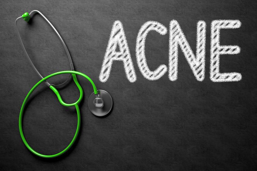 Les vraies causes de l'acné, pourquoi j'ai de l'acné