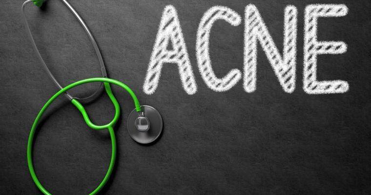 Quelles sont les véritables causes de l'acné ?