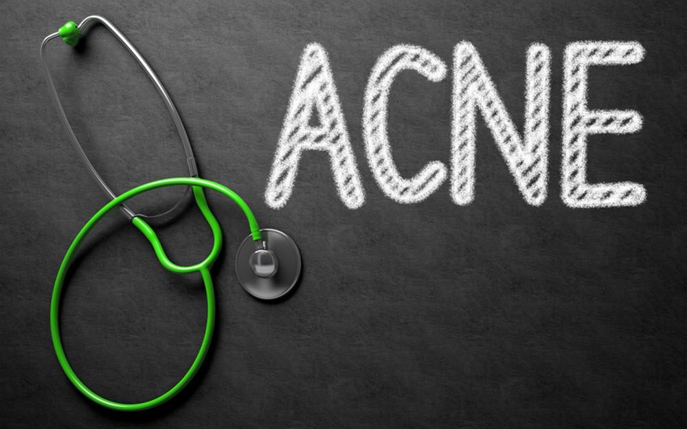Les vraies causes de l'acné
