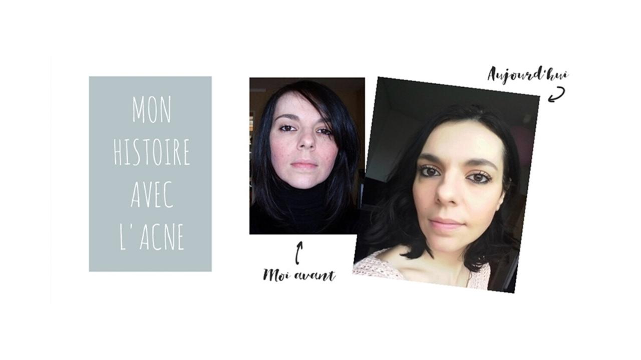 Comment j'ai traité l'acné naturellement ?