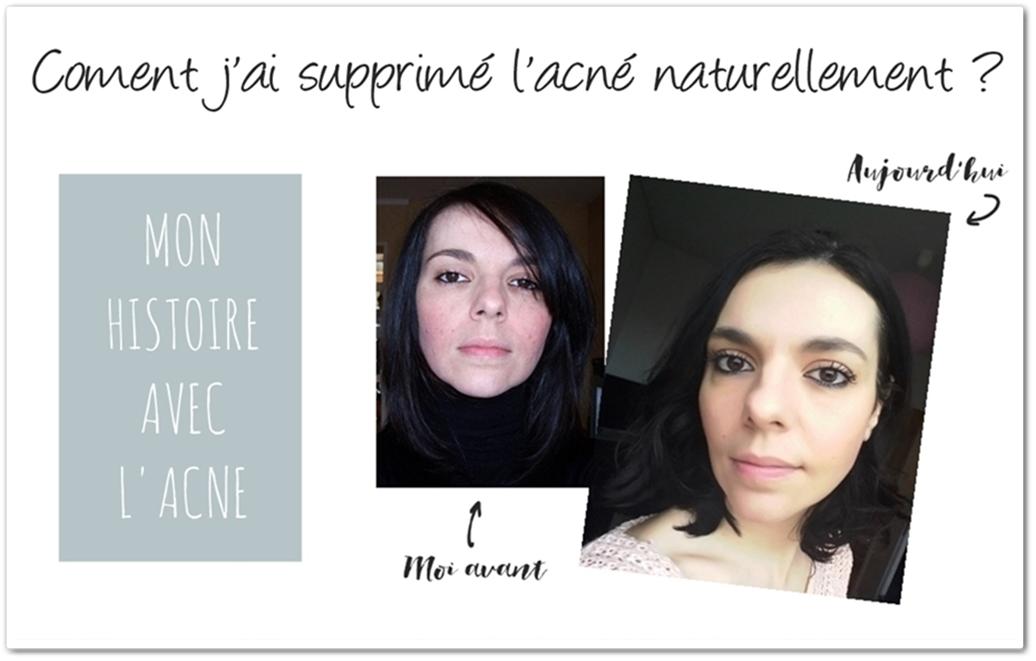 Comment j'ai supprimé l'acné naturellement ?